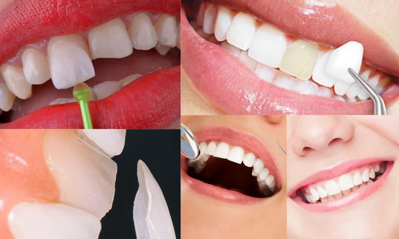 Ön Dişlerde Gülüş Estetiği Tedavileri